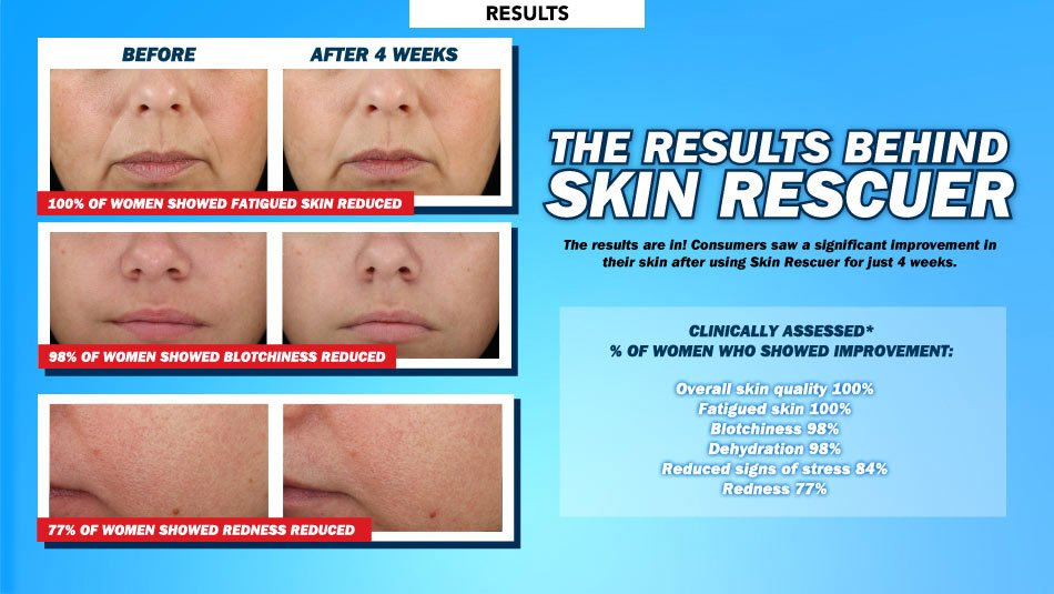 The Results Behind Skin Rescuer