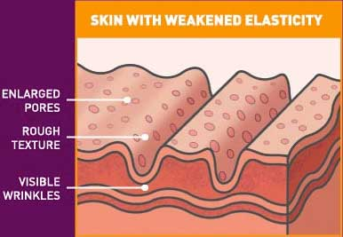 Skin with weakened elasticity